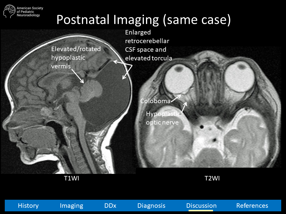 aspnr-case-21-slide11
