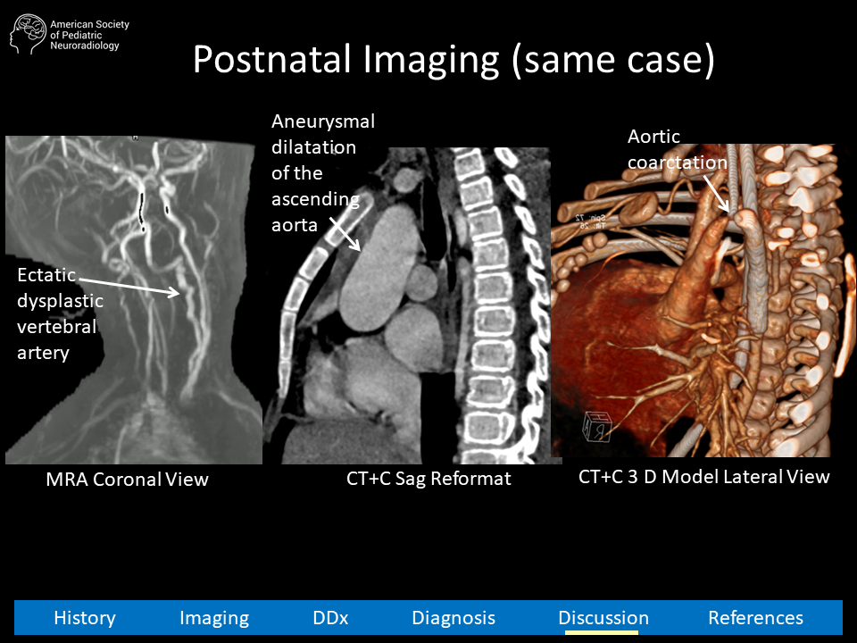aspnr-case-21-slide13